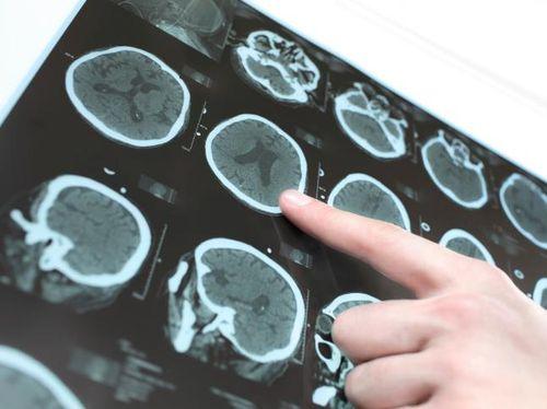 95e6b666 5e9f 46c7 a163 bd6a11268715 43 » Studi: Orang Yang Gemar Kegiatan Berbahaya Punya Otak Lebih Tipis