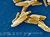 Ketahui Penyebaran 'Si Kuman Udara' Penyebab Tuberkulosis