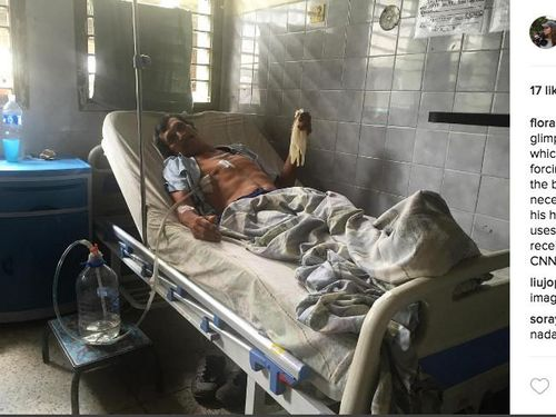 Alat Medis dan Obat Minim, Kisah Sedih RS di Venezuela