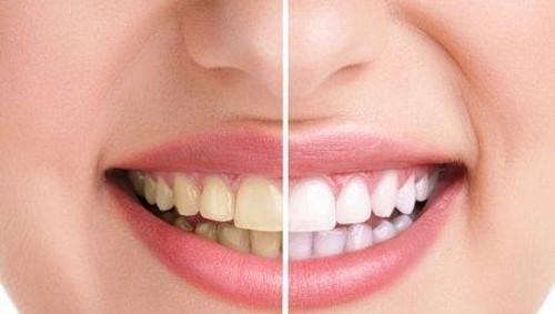 Racikan Minyak dan Garam Bisa Bantu Cerahkan Gigi Secara Alami