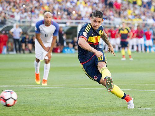 James Dipastikan Absen Lawan Paraguay
