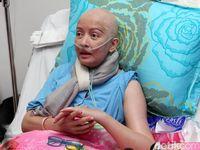 Berangsur Pulih dari Kanker Payudara, Yana Zein Akan Pulang 28 Mei