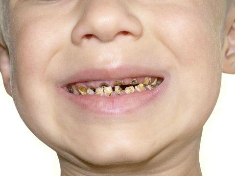 Gigi juga lama-lama bisa rusak.