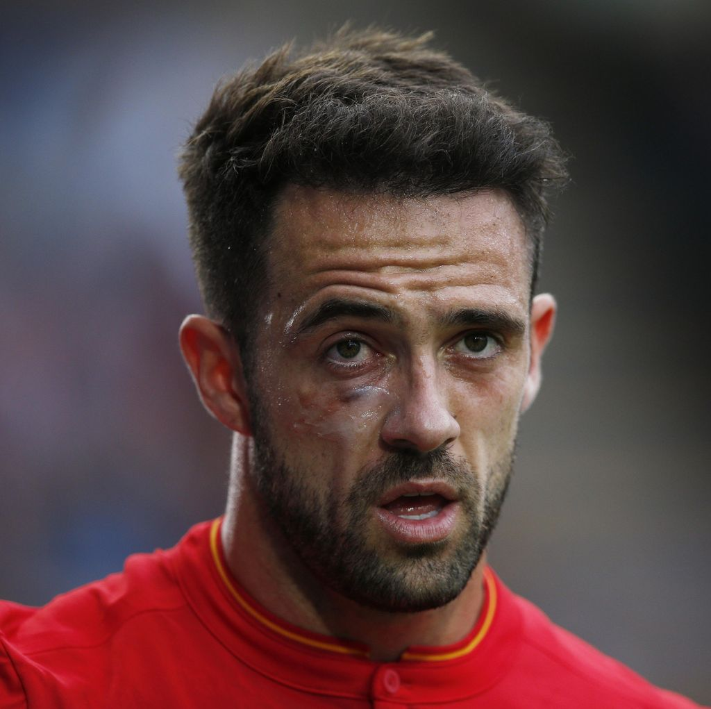 Liverpool vs Spurs: Kesempatan Ings Unjuk Gigi