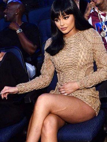 Foto: Ketika Kylie Jenner Pamer Bekas Luka di Pahanya