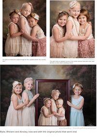 <i>Cute</i>! Potret 3 Survivor Kanker Anak Selama 4 Tahun Berturut-turut