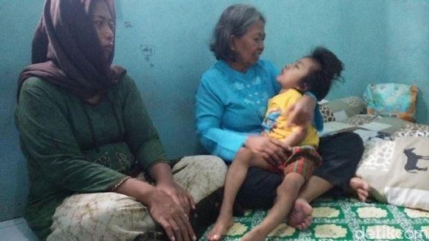 Kisah Fahry, Balita Asal Cirebon yang Kena Radang Otak dan Gizi Buruk