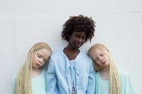 Kembar Albino Ini Tarik Perhatian Dunia dengan Kecantikannya yang Unik