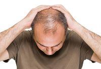 Wasabi Berkhasiat Tumbuhkan Rambut 3 Kali Lebih Cepat Dibanding Obat Penumbuh
