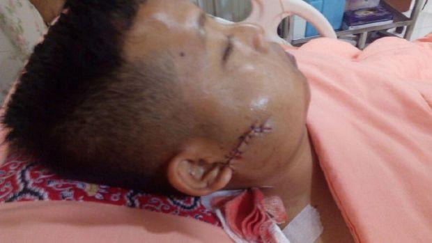 Operasi 2 Anggota Brimob Korban Teror Penusukan Berjalan Lancar