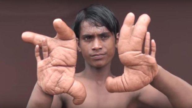 Tangan Tarik membesar hingga 30 cm