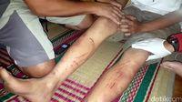 kaki Yusup yang terluka