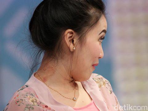 Tanda merah seperti bekas kerokan kelihatan di tengkuk Ayu Ting Ting usai tampil di 'Brownies' baru-baru ini.