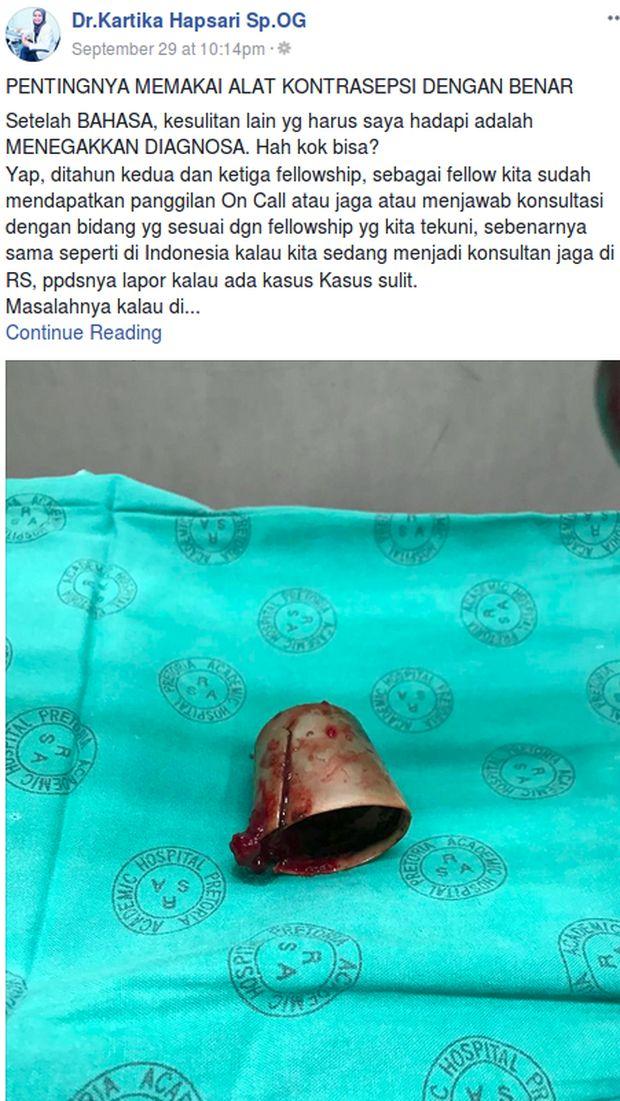 Cerita Viral Dokter Indonesia Temukan Tutup Deodoran di Miss V