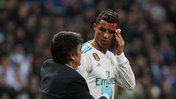 Kepala Cristiano Ronaldo berdarah setelah terkena tendangan bek Deportivo La Coruna, Fabian Schaer, saat ia menanduk bola. (