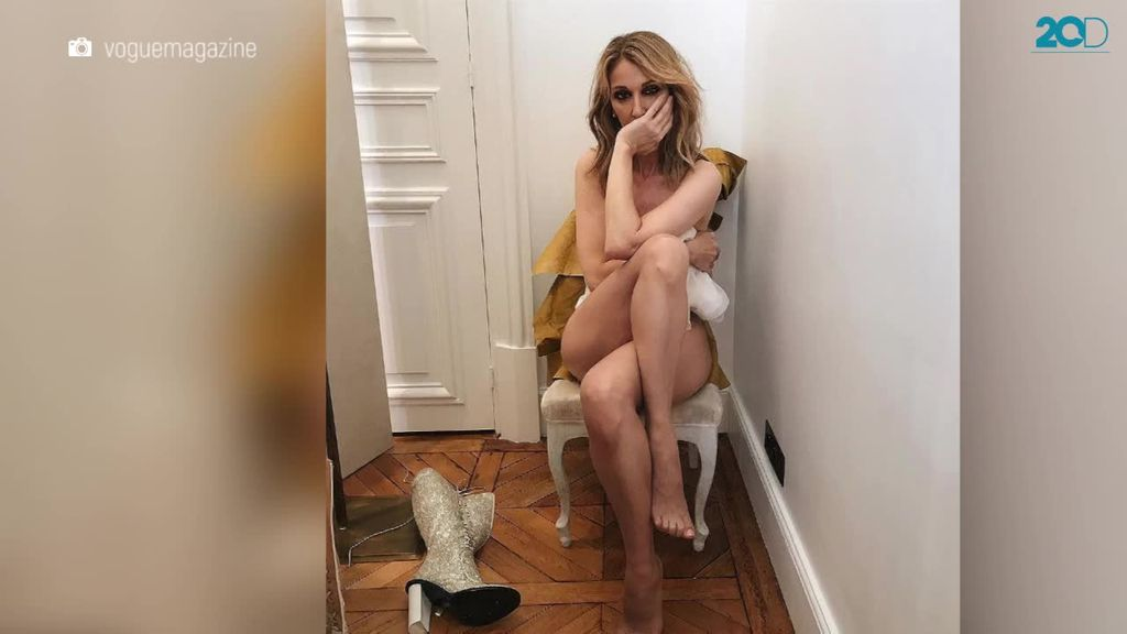 Celine Dion Pamer Tubuh Tanpa Busana untuk Vogue