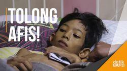 Derita Afis, Si Yatim Pengidap Kelainan Hati dan Gizi Buruk