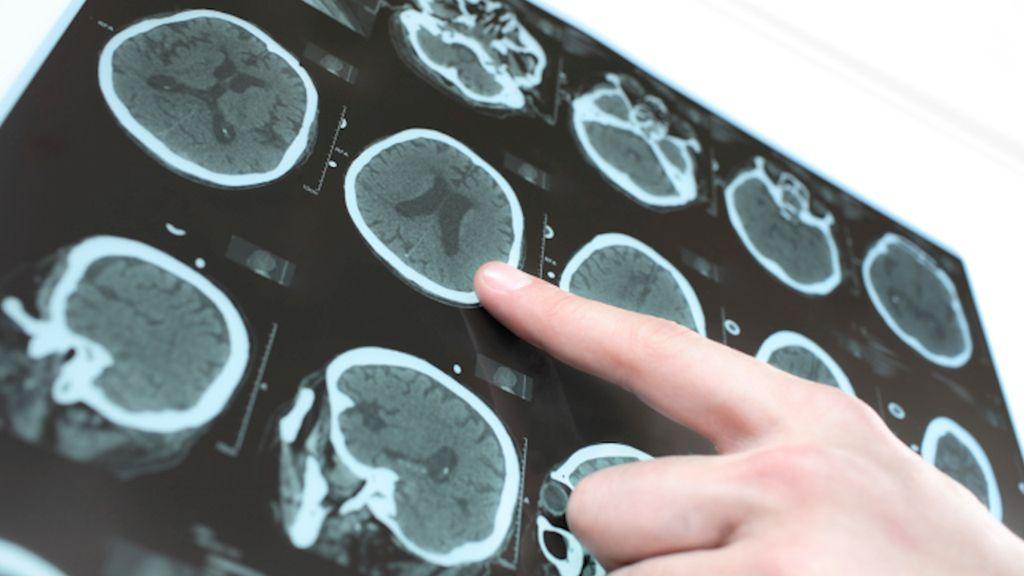 Kurang Tidur? Otak Bisa Makan Sel-selnya Sendiri