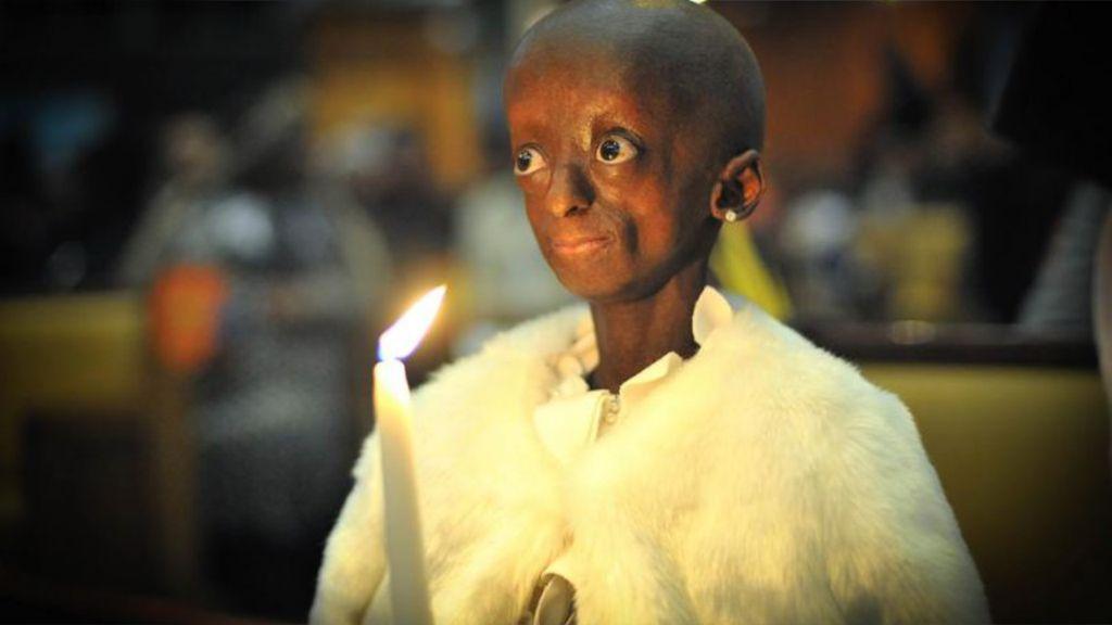 Gadis Bertubuh Nenek Ini Meninggal di Usia 18 Tahun