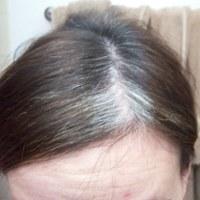 Benarkah Stres Bikin Rambut Ubanan?