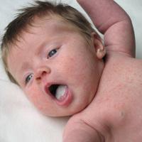 Apa Efeknya Jika Anak Sering Kejang?