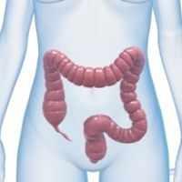 Iskemia Usus, Berkurangnya Suplai Darah ke Sel-sel Usus