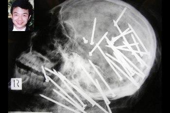 Foto-foto Sinar-X Paling Seram, Paku di Kepala Hingga Belut Masuk Anus