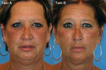 Potret Perubahan Wajah dan Tubuh Si Perokok