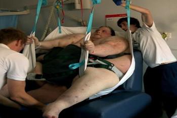 Penampakan Pria Super Gemuk Setelah 2 Tahun Terjebak di Tempat Tidur