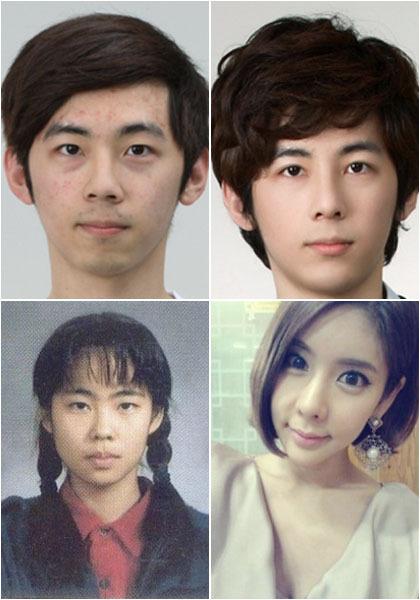 Foto: Perubahan Drastis Wajah Orang Korea Setelah Operasi Plastik 1