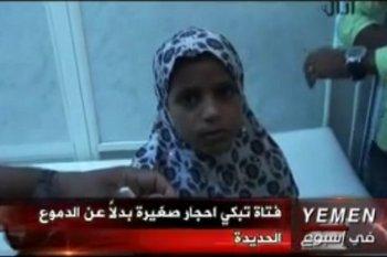 Saadiya Saleh, Gadis Berpenyakit Aneh yang Keluarkan Air Mata Batu
