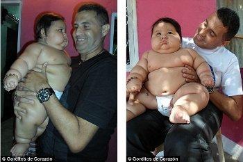 Santiago Mendoza, Bayi Umur 8 Bulan Tapi Bobotnya Sama dengan Anak 6 Tahun