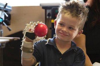 Robohand, Lengan Robotik Murah Hasil Karya Tukang Kayu