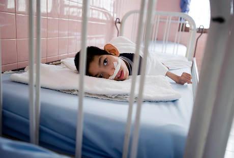 Wajah Malang Anak-anak Korban Perang Vietnam yang Cacat karena Racun Kimia