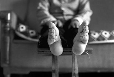 Potret Wanita-wanita China dengan Jari Kaki Menyatu Akibat Foot-Binding