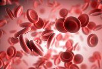 Hairy Cell Leukemia, Kanker Darah Langka Akibat Sel Limfosit Abnormal