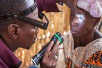 Ketika berkunjung ke sebuah desa terpencil di Mali bernama N'Korobougou, Fomba menemukan seorang wanita berumur 68 tahun yang mengidap trichiasis, atau trachoma stadium lanjut. Saking parahnya, bulu mata wanita ini sudah menekuk ke dalam, sehingga tiap kali ia berkedip, bola matanya terasa perih.
