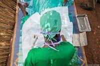 Akhirnya Doumbia pun dioperasi. Dalam prosedur tersebut, bulu mata wanita yang hidup dari bertani tersebut harus dikembalikan ke posisi semula agar tidak mengganggu bola matanya. Prosedur ini hanya berlangsung selama 10 menit saja. (Foto: Javier Acebal/BBC)