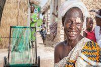 Setelah dioperasi, Doumbia mengaku perih di matanya telah hilang dan ia pun lega karena bisa beraktivitas normal kembali.