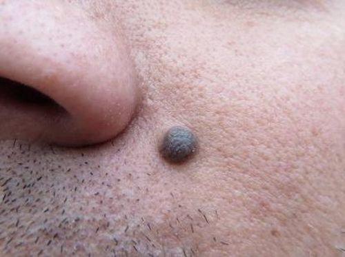 Yuk Lakukan Sakuri, Periksa Tahi Lalat Sendiri Untuk Skrining Kanker