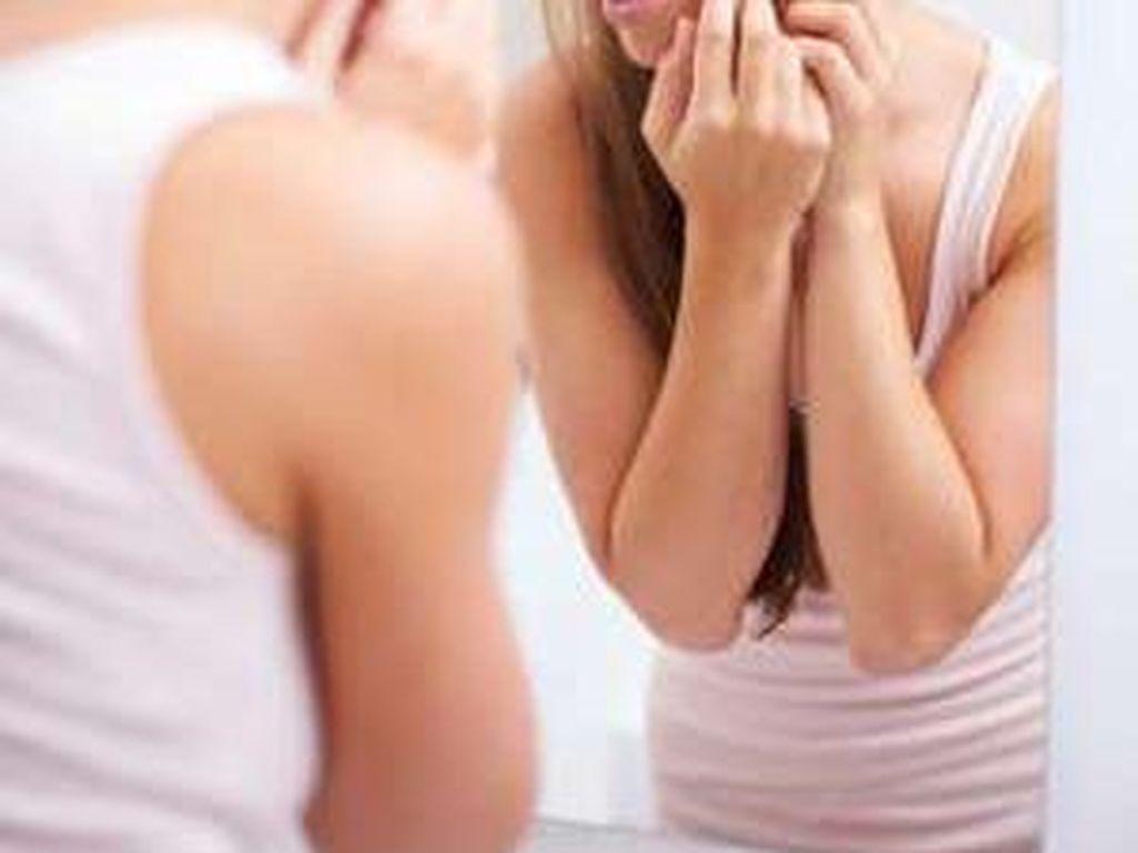 Tips Aman Ketika Harus Memencet Jerawat Sendiri