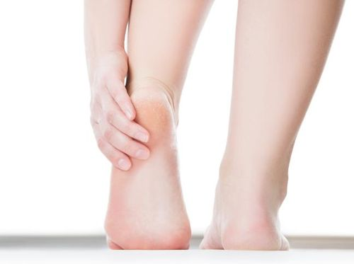 Kaki Terasa Sakit Bila Terlalu Banyak Jalan, Tanda Osteoporosis?
