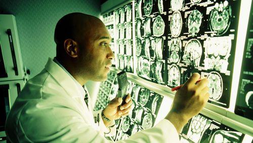 Riset: Virus Zika Juga Berimplikasi pada Otak Orang Dewasa