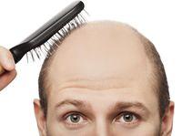Ada anggapan bahwa masalah kerontokan rambut hanya untuk mereka yang tua saja. Sayangnya meski memang kerontokan umumnya dialami orang tua, namun tanda-tanda kerontokan sudah bisa mulai terjadi di umur 20-an. (Foto: Thinkstock)