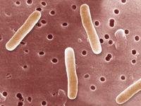 Gastroenteritis adalah penyakit peradangan usus halus karena ada infeksi bakteri, virus, atau fungus. Biasanya hal ini terjadi ketika seseorang mengonsumsi makanan yang tercemar. (Foto: Gettyimages)