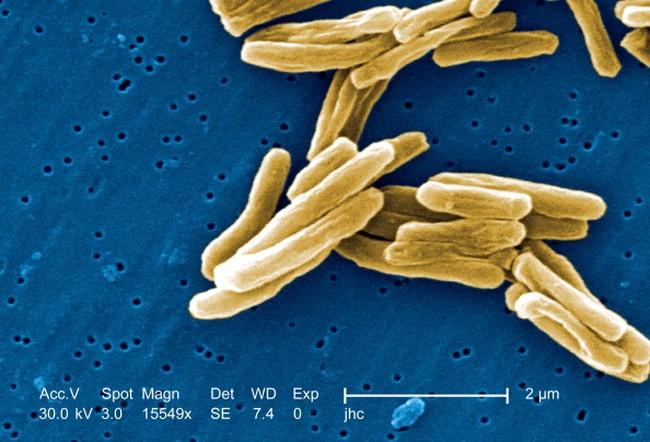 Foto-foto Mikroskopis Penampakan Bakteri Penyakit di Sekitar Kita