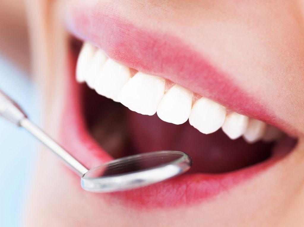 5 Cara yang Patut Dicoba untuk Dapatkan Gigi Putih dan Senyum Indah