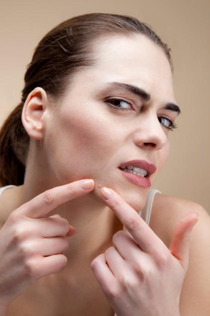 5 Cara Alami Hilangkan Jerawat yang Bisa Dilakukan Akhir Pekan Ini