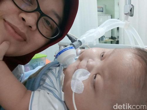 Paru-parunya Kaku, Balita 14 Bulan Ini Butuh Home Ventilator