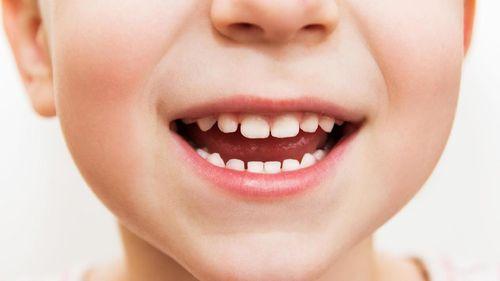 Mana Lebih Berbahaya untuk Gigi Anak, Keripik atau Buah Kering?